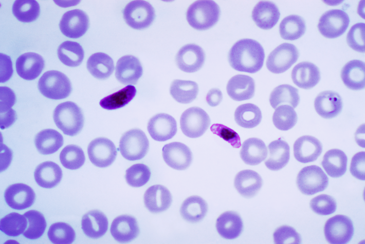 Plasmodium_falciparum_01